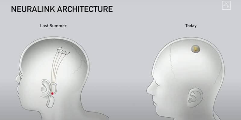 neuralink de elon musk